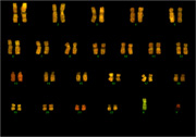 FISH image of human chromosomes