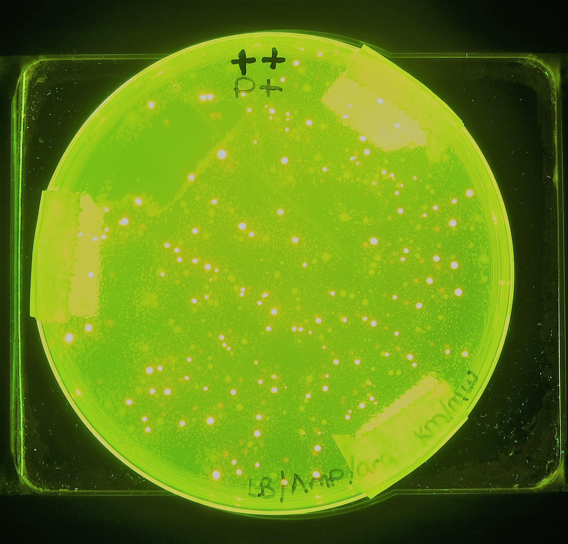 transformed bacterial cells expresing rfp and fluorescing